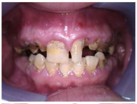 United Concordia Dental Insurance | Caring for Patients Affected by