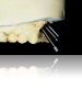 Figure 9. In the presence of angulation problems or implants placed in the wrong location, cement-retained restorations are often required.