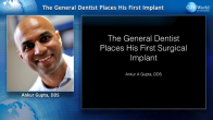 The General Dentist Places a First Implant Webinar Thumbnail