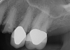 Fig 8. Preoperative periapical radiograph.