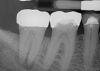 Fig 7. Primary endodontic and secondary periodontal lesion, mandibular second molar.