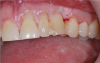 Fig 12. The patient's previous tooth bonded into place.