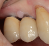 Improvement in tissue health around an implant after use of an oral irrigator.
