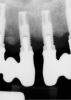 Radiographs showing bone loss around an implant.